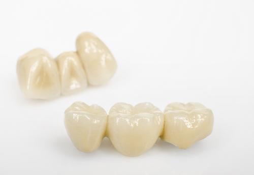 Kronen - Zahnarztpraxis Schiefbahn