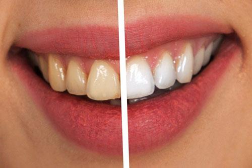 Bleaching - Zahnarztpraxis Willich Schiefbahn