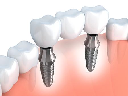 Implantologie - Zahnarztpraxis Schiefbahn