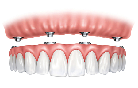 Implantologie Kronen - Zahnarztpraxis Willich Schiefbahn