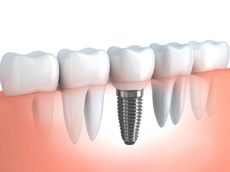 Implantologie - Zahnarztpraxis Willich Schiefbahn
