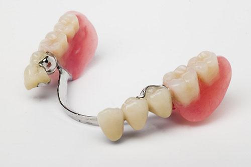 Geschiebeprothese - Zahnarztpraxis Willich Schiefbahn