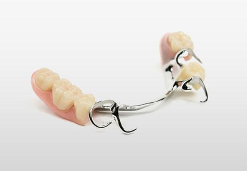 Klammerprothese - Zahnarztpraxis Willich Schiefbahn