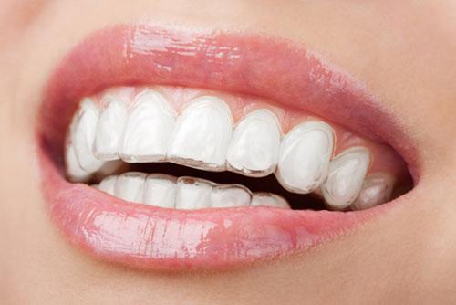 fast unsichtbare Zahnspange 2 - Zahnarztpraxis Willich Schiefbahn