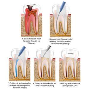 Wurzelkanalbehandlung Skizze - Zahnarztpraxis in Willich Schiefbahn
