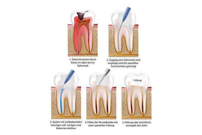 Wurzelkanabehandlung - Zahnarztpraxis in Willich Schiefbahn